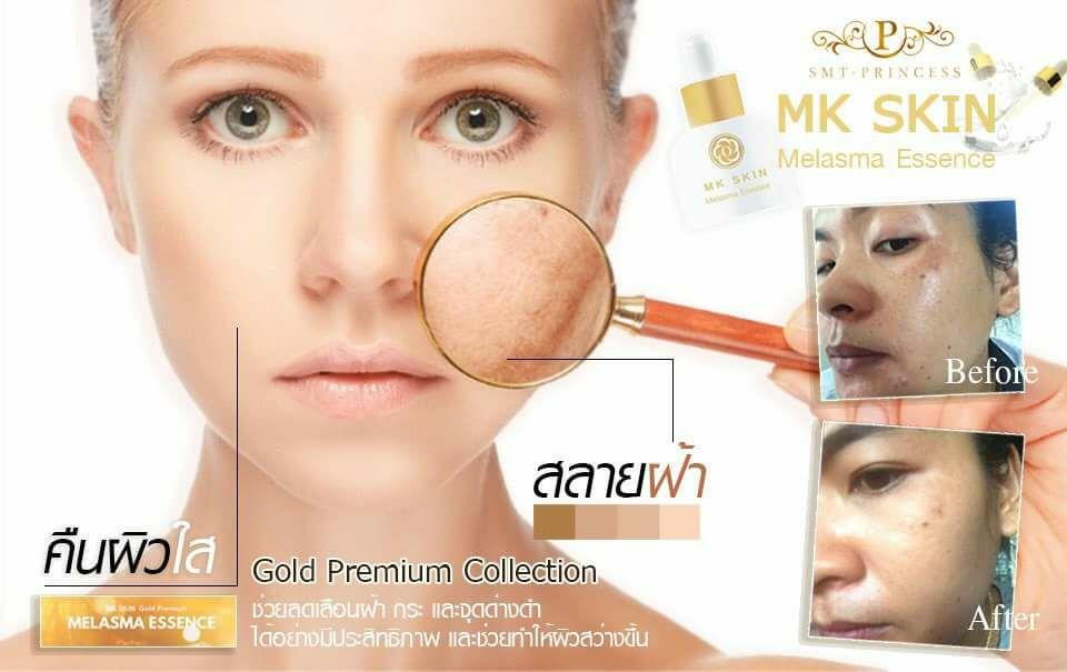 MK Skin Melasma ตัดวงจรฝ้า คนท้องใช้ได้